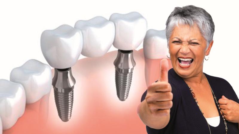 Implantátum beültetés (számos fajta közül választhat) Fémmentes implantátum beültetés Stabil fogsor program, fogsor rögzítés Fogászati allergia vizsgálatok Csontpótlás, sinus lift (arcüreg emelés) Implantátumokra épülő fémvázas és fémmentes pótlások (híd, korona) készítés Gondozás Műtétek akár altatásban is kérhetőek